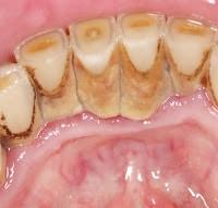 Plaque dental problems