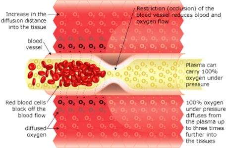Hbot: Oxygen Treatment, How it works