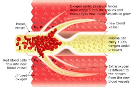 HBOT OXYGEN TREATMENT