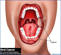 Oral cancer common dental problems