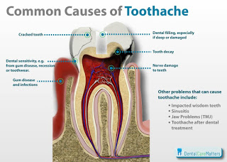 Discover What May Be Causing Your Toothache