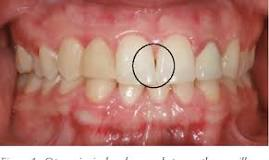 interdental papilla The Area of Your Mouth Most Susceptible to Gingivitis