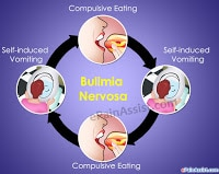 How To Prevent Dental Problems When You Have Bulimia nervosa