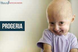 Progeria: Causes, Symptoms, and Treatment