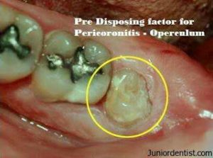 pericoronitis is the Common Reasons for Tooth Extraction