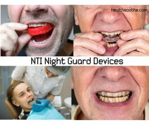 NTI Night Guard Device: Reduces Jaw-Clenching and Headache.