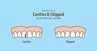 How-will-my-cracked-tooth-be-examined