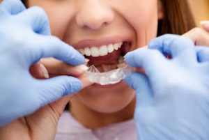 Orthodontics Treatment: Will clear aligners, like Invisalign, work for you? 1