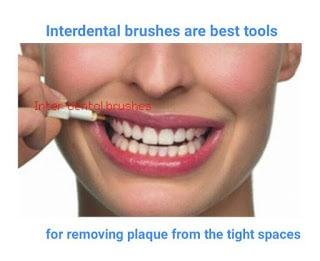 4 Steps to use inter-dental brushes