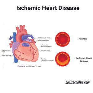 Ischemic Heart Disease: Symptoms, Causes, Treatment and Prevention