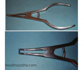 Orthodontic instruments: Separator placing pliers